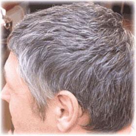 Grey Hair Solutions